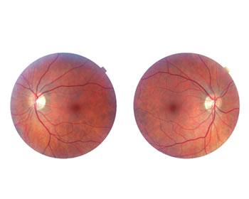 Augenzentrum Linth
